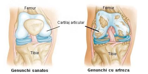 genunchi sanatos vs genunchi cu artroza